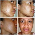 PIMPLES * BLACKHEADS * ACNE SCARS? BE PROACTIVE!